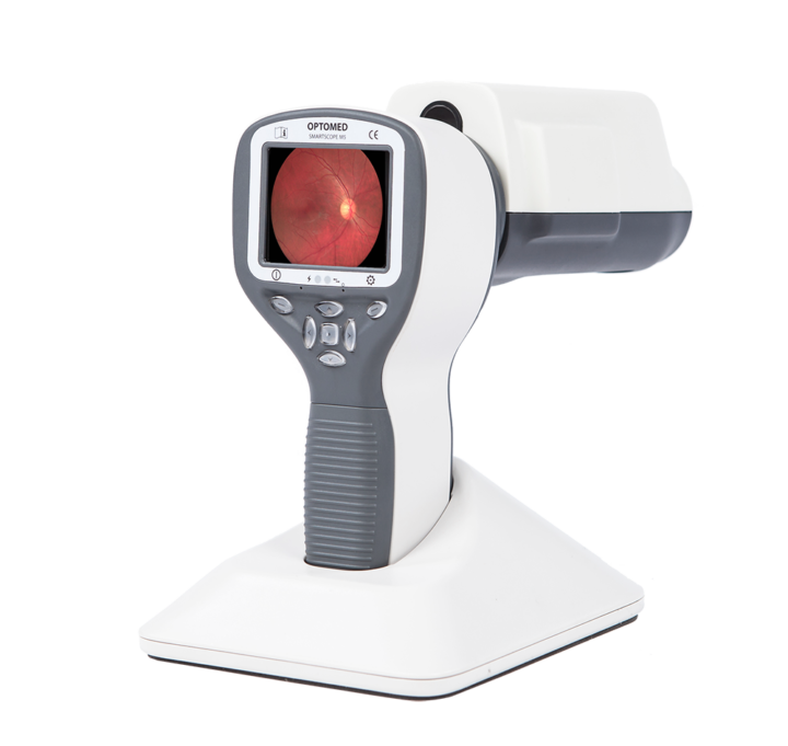 Smartscope PRO Affordable handheld fundus camera